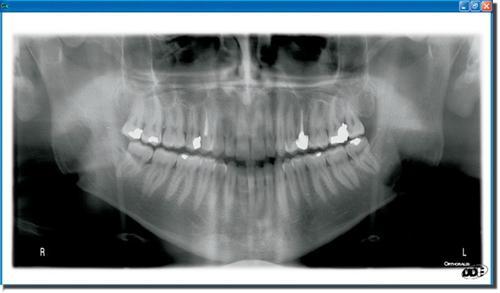 Radiographie numérique